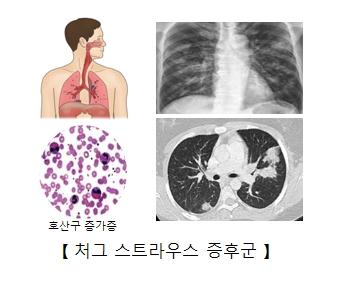 처그 스트라우스 증후군에 의한 x-ray사진 및 호산구 증가증 세포 이미지