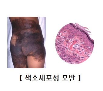 엉덩이 주변에 색소 세포성 모반이 발생한 모습 및 색소세포성 모반의 예시