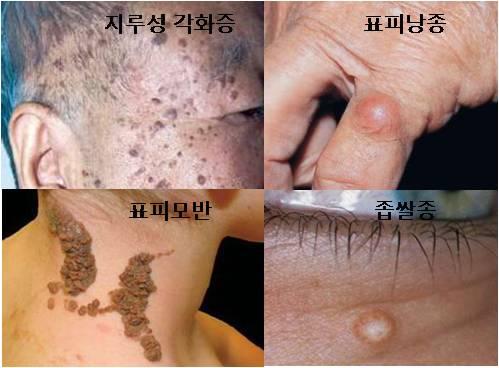 지루성각화증 표피낭종 표피모반 좁쌀종등 피부의 양성종양 예시
