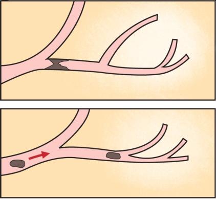 혈관에 혈전증이 생겨 영양분이 지나가지 못하는 이미지와 정상적인 혈관의 이미지