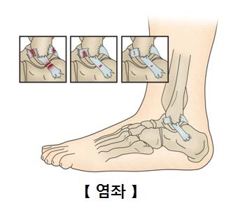 염좌의단계 1단계,2단계,3단계,발목사진예시