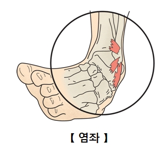 염좌에 걸린 발목 사진