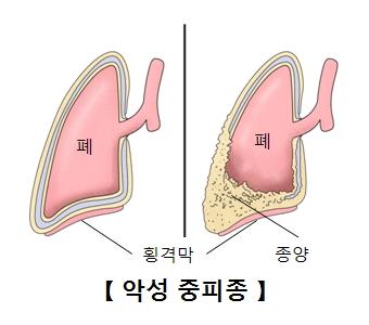 횡격막으로 둘러싸인 정상적인 폐의모습 종양으로 둘러싸인 악성중피종의 폐의 모습