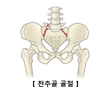 천추골 골절의 사진 예시