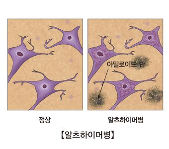 알츠하이머병-정상적인세포와 알츠하이머병에 걸린 사람의 세포 그림 예시
