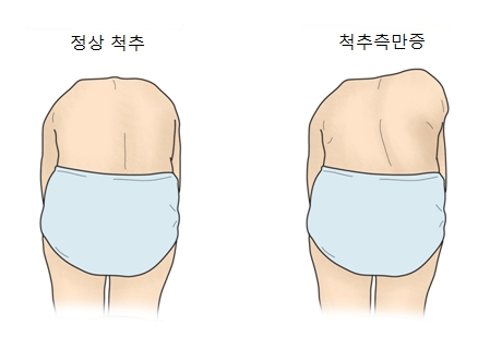 허리를숙였을때 정상척추와 척추측만증 사진예시