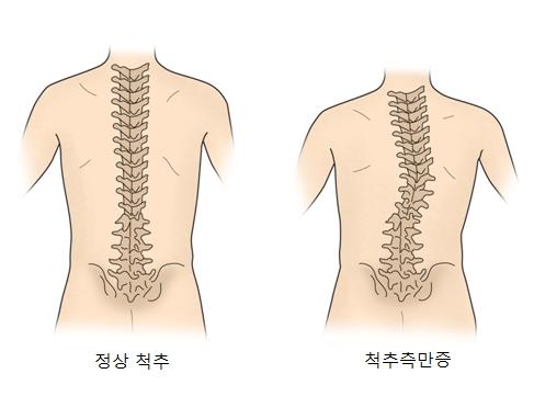 정상척추와 척추측만증 사진 예시