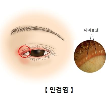마이봄선에 염증이 생겨 안검염에 걸린 실제 눈의 모습