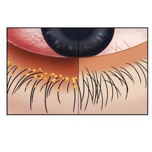 정상적인 눈의 모습과 안검염에 걸린 눈의 모습비교