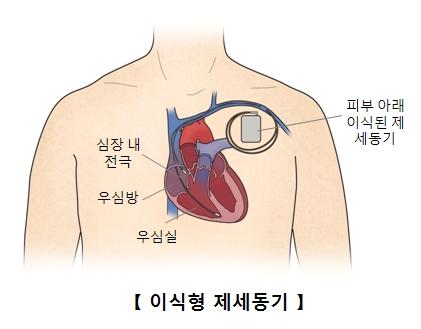 심장 내 전극 우심방 우심실 피부아래 이식된 제세동기의 위치및 이식형 제세동기의 예시