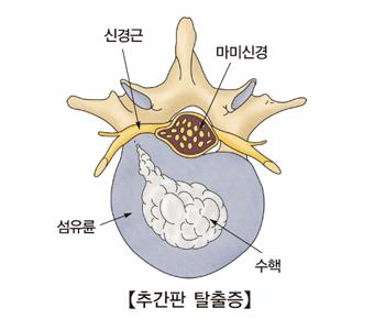 추간판탈출증및 신경근,마미신경,섬유륜,수핵의 위치