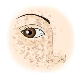 눈가주변으로 기미가 분포된 모습 예시