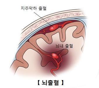 뇌출혈-지주막하출혈과 뇌내출혈 사진 예시