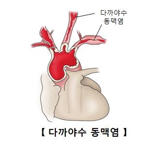 다까야수 동맥염의 예시