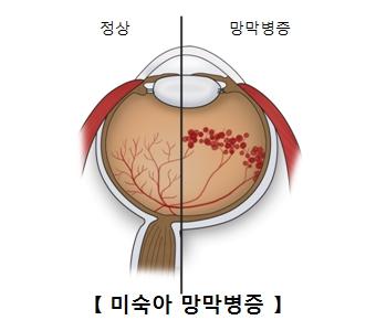미숙아의 정상적인 망막과 망막병증에걸린 사진 예시