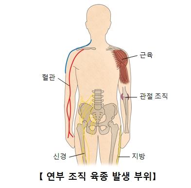 연부조직육종발생부위 및 혈관,근육,관절조직,신경,지방의 위치