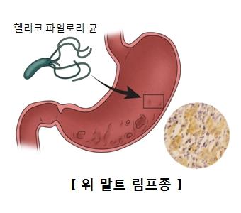 위장속 헬리코 파일로리 균으로 인해 위 말트 림프종이 발생한 예시