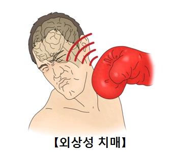 외상성치매 권투글러브를 낀 주먹에 머리를 강타 당하는 남성