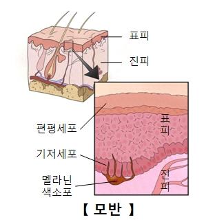 표피 진피 편평세포 기저세포 멜라닌색소포로 이루워진 모반의 구성 예시