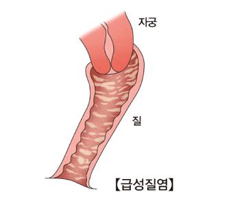 급성질염에걸린 자궁과질의 모습