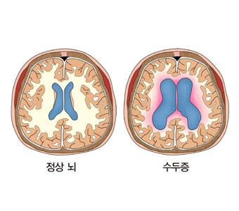 정상뇌와 수두증에 걸린 뇌의 그림 예시