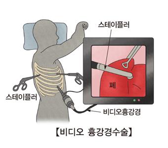 비디오 흉강경수술로 폐결절을 수술하는 예시