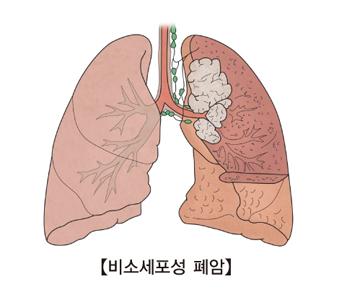 비소세포성 폐암에 대한 예시