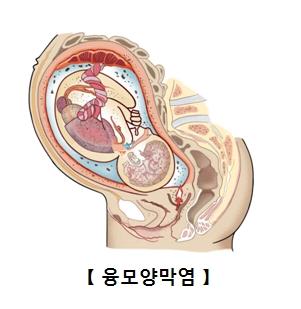 융모양막염-임산부의 융모와 양막에 염증이 생긴 그림 예시