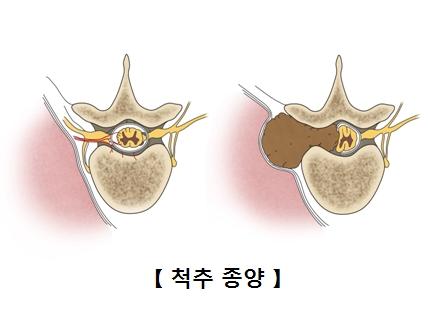 척추 종양의 예시