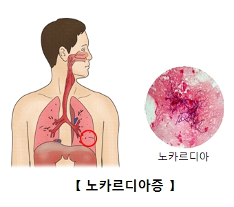 폐에감염된 노카르디아 세포의 모습
