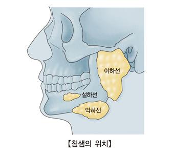 침샘인 이하선 악하선 설하선의 위치