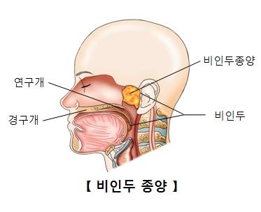 비인두종양의사진예시와 연구개,경구개,비인두의 위치