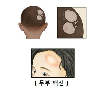 뒷통수와 이마에 곰팡이균이 나타난 사진예시