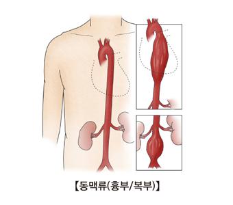 동맥류(흉부/복부) 그림 예시