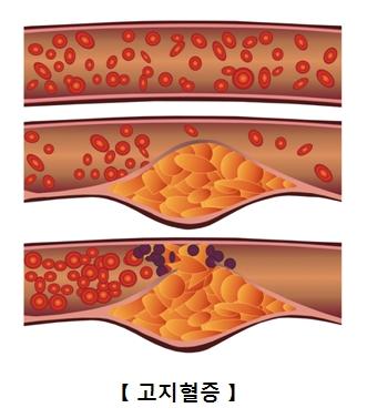 고지혈증 생성 과정 그림 예시
