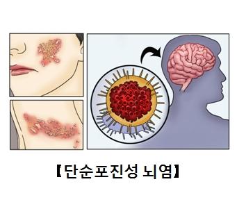 얼굴과목에 단순포진성 뇌염이 발병된모습과 뇌안에 있는 세포의모습