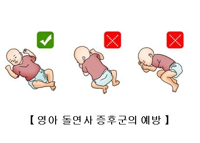 영아 돌연사 증후군의 예방에 대한 유아의 올바른 자세 예시