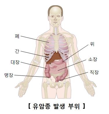 폐 간 대장 맹장 위 소장 직장등 유암종 발생 부위 예시