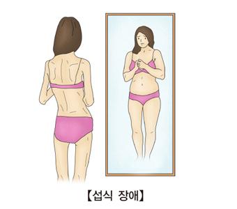 속옷만입은 마른체형의 여성이 거울을 보고있는데 뚱뚱하게 보이고있음
