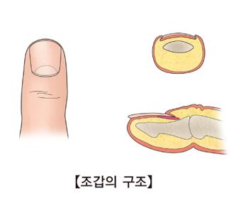 손가락 부위의 조갑의 구조 예시