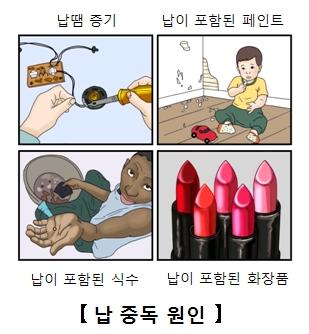 납 중독의 원인 납땜증기,납이포함된페인트,납이포함된식수,납이포함된화장품