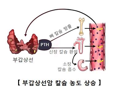 부갑상선의 호르몬이 증가되면서 뼈 칼슘방출 신장 칼슘 환원 소장 칼슘 흡수등 부갑상선암 칼슘농도 상승의 예시