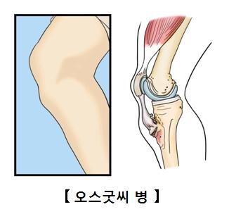 무릎부분의 근육과뼈의 해부도예시