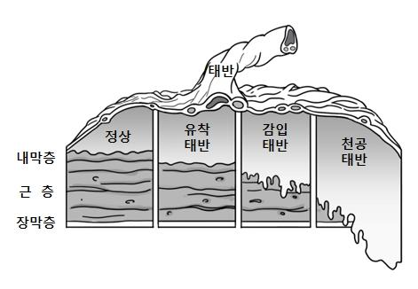 태반안의 내막층 근층 장막층의 모습및 정상,유착태반,감임태반,청공태반일때의 그림 예시