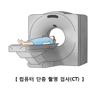 컴퓨터 단층 찰영검사(CT)를찍고있는남성