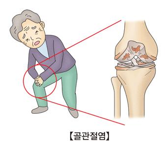 무릎관절이 아픈할아버지와 그 할아버지의 무릎관전모습