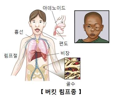 아데노이드 편도 흉선 림프젤 비장 골수의위치와 버킷림프종에감염되한쪽눈이 부운듯하얼굴을한아이의모습