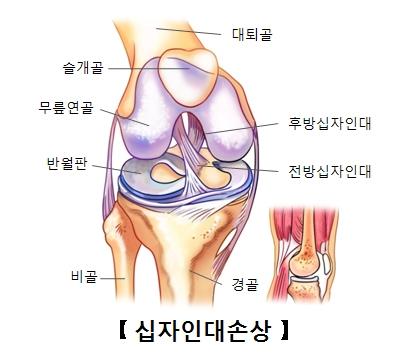 십자인대의구조 슬개골,무릎연골,반월판,비골,경골,전방십자인대,후방십자인대위 위치