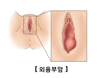 외음부암-여성의 생식기계 입구