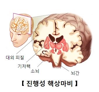 진행성 핵상마비-대외피질,기저핵,소뇌,뇌간 위치